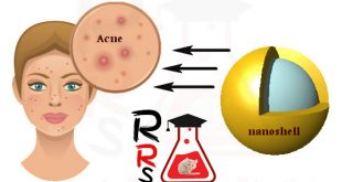 best acne treatment for sensitive dry skin depending on nanotechnology and lasers