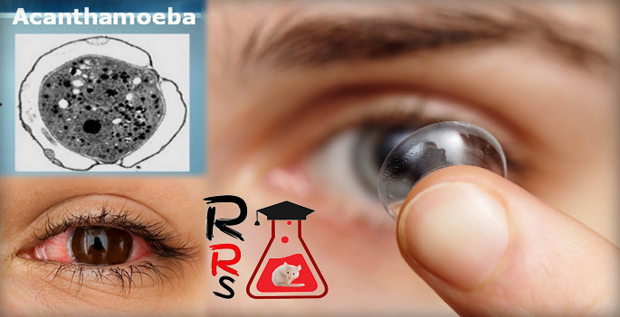 eye infection from contacts may cause blindness